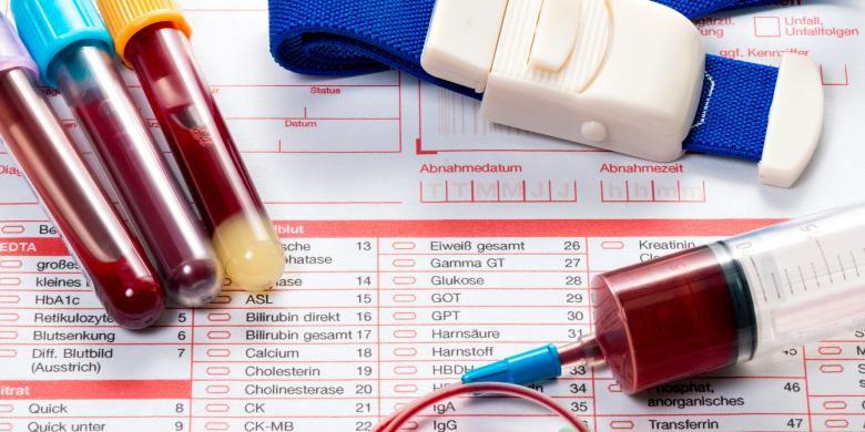 Jenis Kanker Yang Dapat di Deteksi Lewat Tes Darah